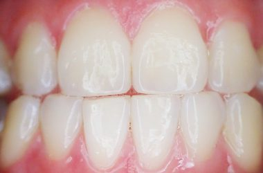 zęby, dentysta
